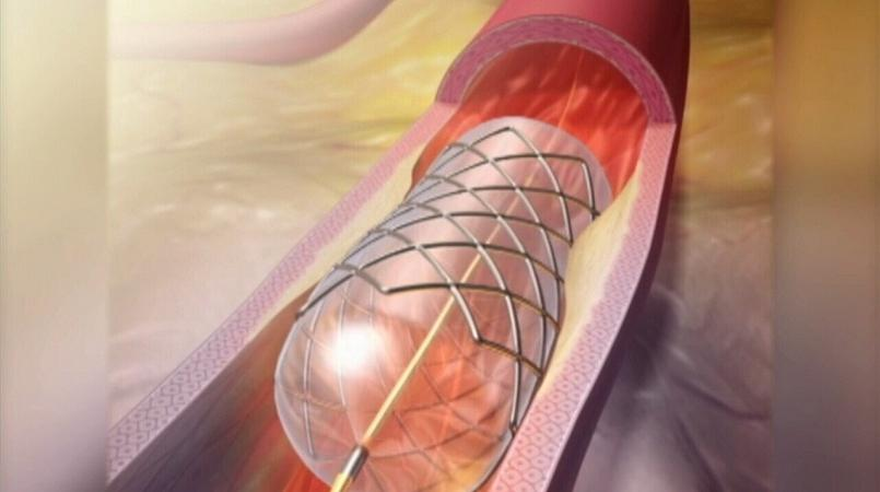What Is Angioplasty Loop Png