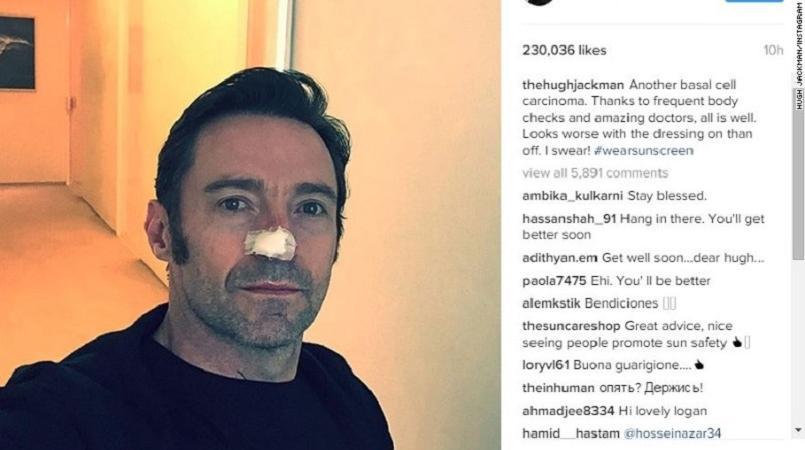 Hugh Jackman Reveals Another Skin Cancer Treatment Loop Tonga